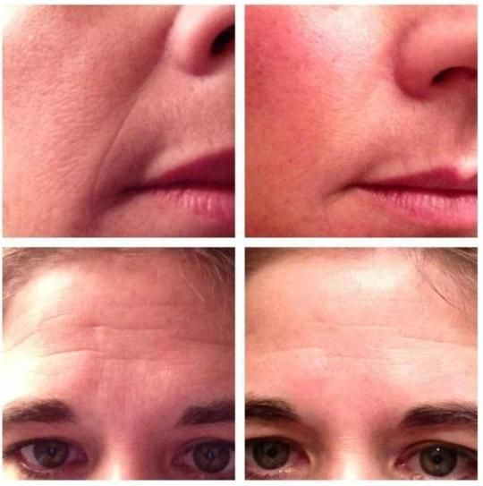 rodan and fields macro exfoliator results - click through for more before & after pics and to enter to win a foaming sunless tanner  Rodan+Fields  Http://rachels.myrandf.com