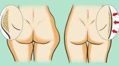 Un guide naturel pour perdre la graisse de l'intérieur des cuisses et les affiner … Résultat Rapide et manifeste !