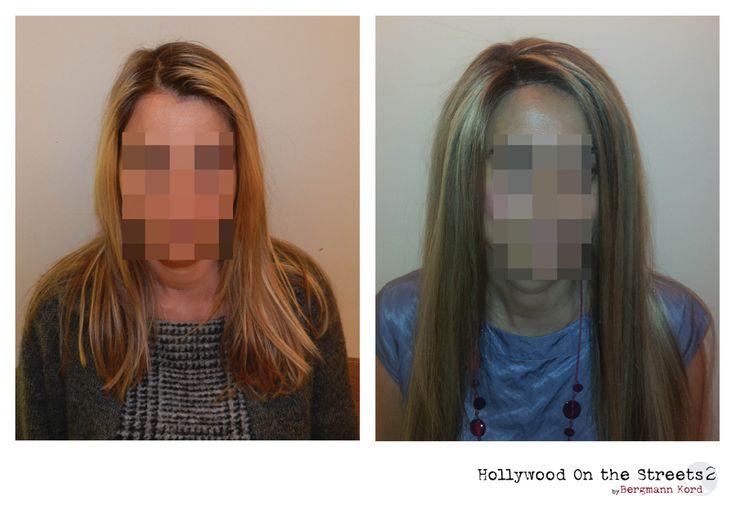 www.hos2.gr Αποκατάσταση μαλλιών με την τεχνική hos-2 μετά τις χημειοθεραπείες.