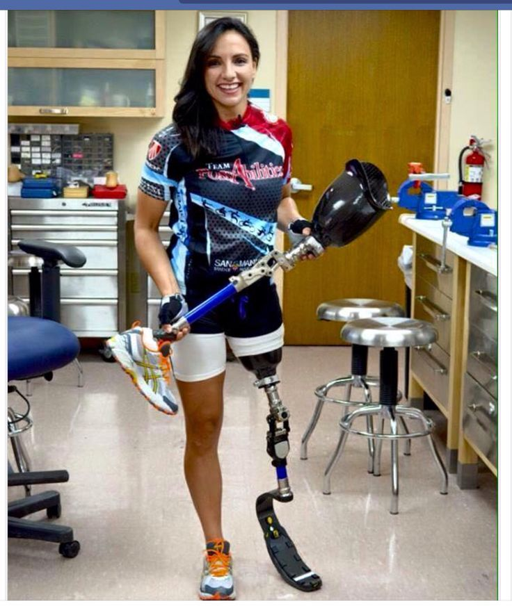 Dating a girl with a prosthetic leg