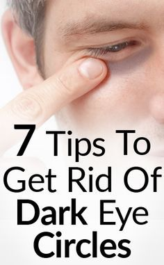 7 Tips To Get Rid Of Black Under Eye | How To Eliminate Dark Circles Around Eyes