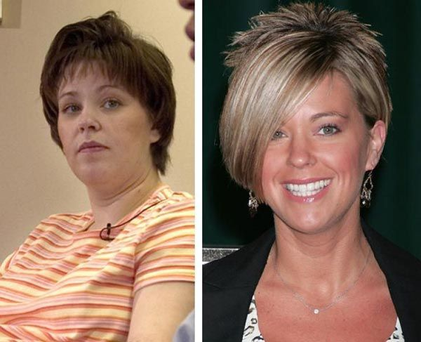 Kate Gosselin Plastic Surgery Before & After