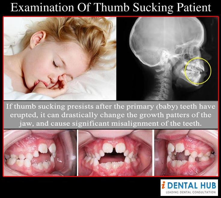 Why the thumb needs to go! #Bozemanorthodontics Dr. Fred Schwendeman, DMD. Orthodontics in Bozeman, Montana. bozemansmiles.com #Orthodontics #Bozeman