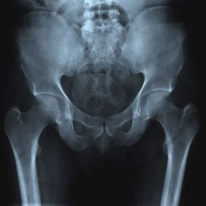 4 Little-Known Joints Affected by Rheumatoid Arthritis - Just Diagnosed - Rheumatoid Arthritis