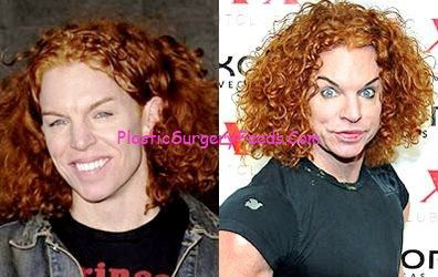 Carrot Top Before and After Plastic Surgery Gone Wrong Pictures