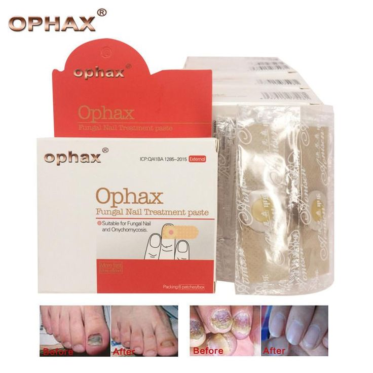 Herbal Fungal Nail Treatment Anti Fungal Nail Infection Onychomycosis paronychia foot fungus 60pcs/lot, Fungal Nail Treatment paste