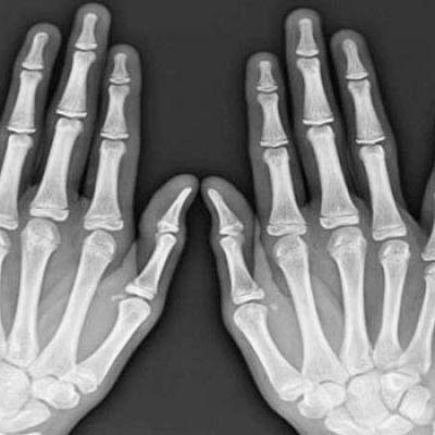 Pijnlijke knokkels of gewrichtspijn in de vingers. Wat kan de oorzaak zijn? Heb ik artrose en hoe herken ik artrose? Hoe wordt artrose behandeld?