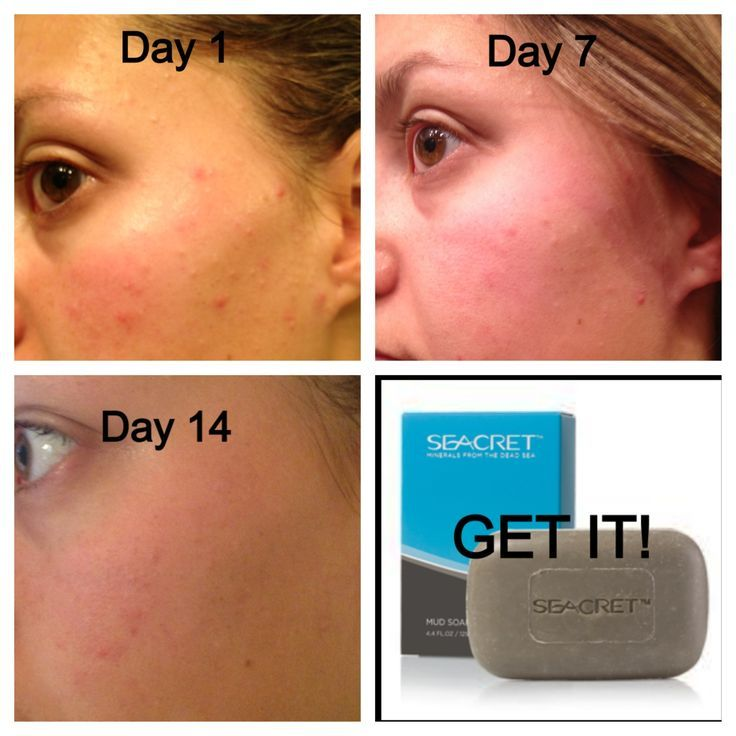 Help clear and prevent #Acnebreakouts with #Seacret's #MudSoap! Mud Soap can also help aid #Eczema, #Psoriasis, #Rosacea and most other #skinproblems. Contact Me for more information! http://www.seacretdirect.com/andreaseacretobsession