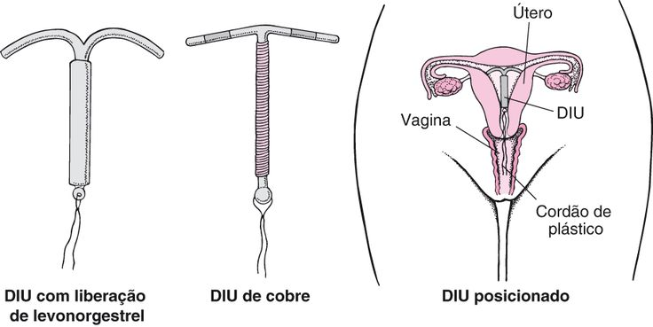 The Pros And Cons Of The Copper Iud