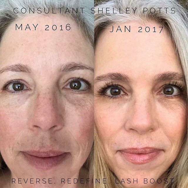 "REVERSE, REDEFINE, & LASH BOOST👁👁!!! NO MAKEUP in either picture, just our lip serum💋  This is what 'Shelley Potts' had to say: ""⭐️Skin Goals Achieved⭐️ Sun damage ✔️ Dark areas ✔️ Even/Brighter skin ✔️ Fine lines softened ✔️ Smoother skin ✔️ Lashes/brow awesome ✔️ No make up/only lip serum in both pictures. It wasn't overnight, but worth the effort!!"" I can help you and work within your budget. Send me a message📲 AndreaComuzziServetto.MyRandF.com"
