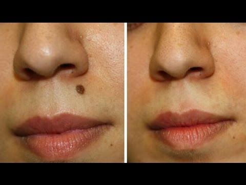 How to Get Rid of Moles on Your Face at Home Naturally