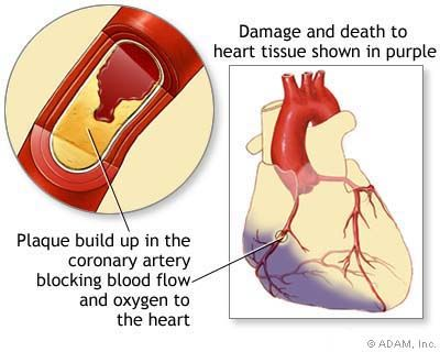 Heart Attack - Symptoms, Diagnosis, Treatment of Heart Attack - NY Times Health Information