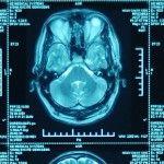 La pérdida de la asimetría del cerebro puede tener consecuencias significativas en el procesamiento sensorial