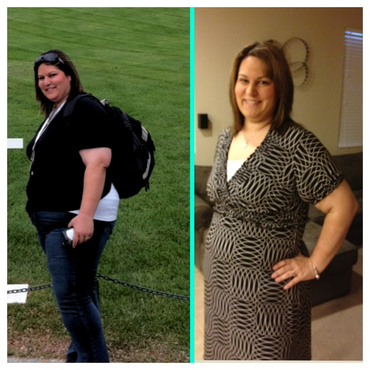 I Wanted To Post A Before And After Picture Of The: 78+ Images About WLS Before & After On Pinterest