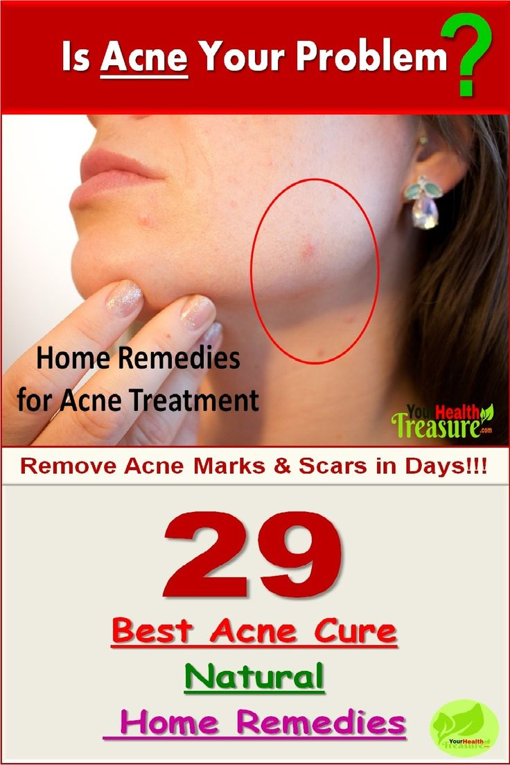 best ideas about treatment for pimples on pinterest natural
