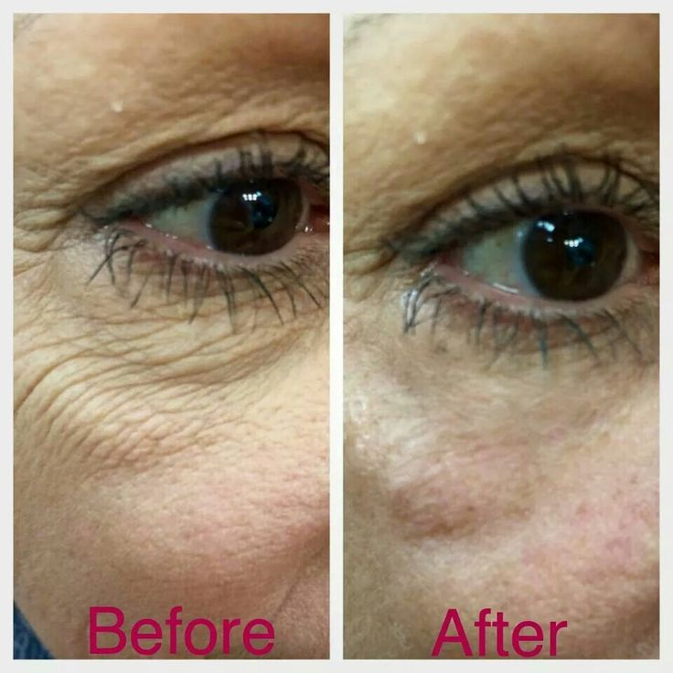 Instantly Ageless works in only 2 minutes  http://youonlybetter.jeunesseglobal.com/products.aspx?p=INSTANTLY_AGELESS