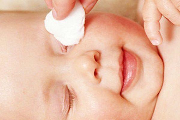 Notas sobre conjuntivitis en la infancia: causas & tratamiento ¡Toma nota!