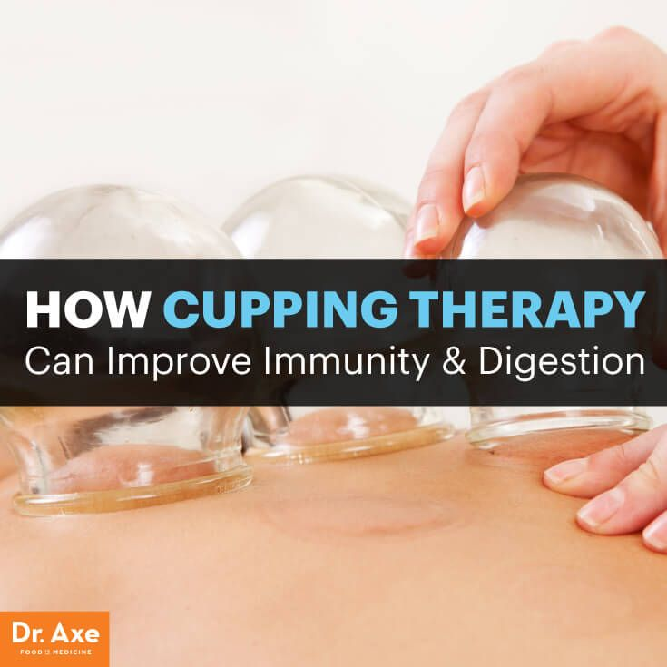 Cupping therapy - Dr. Axe http://www.draxe.com #health #holistic #natural