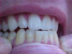 L'art de décoder le langage des dents - Les mots qui n'ont pu être verbalisés s'expriment à travers les maux de dents. Ainsi, nulle atteinte (carie, déchaussement, fracture, etc.) n'apparaît par hasard, mais exprime un langage à part entière: le langage des dents, langage du dedans.