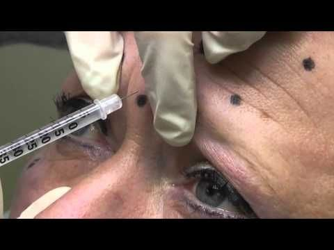 Botox training - YouTube