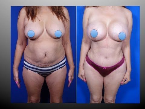 Mommy Makeover by Dr.Hourglass Houston Plastic Surgeon Tel.(713)636-2729 www.drhourglass.com