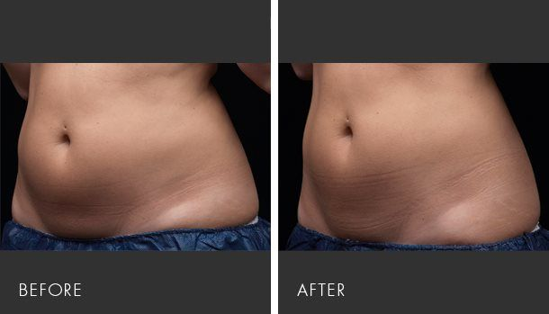 Exilis Before And After Photos Exilis Pinterest