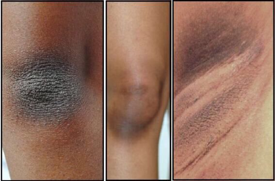 how to get rid of dark skin from shaving