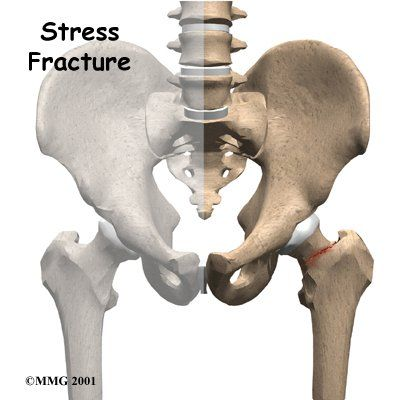 Info on hip fractures