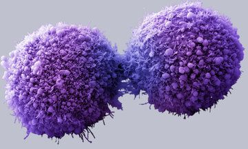 Pancreatic Cancer Is Actually 4 Different Diseases