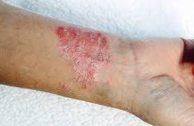 cara mengobati penyakit eksim secara alami terampuh | Obat Batuk Berdarah