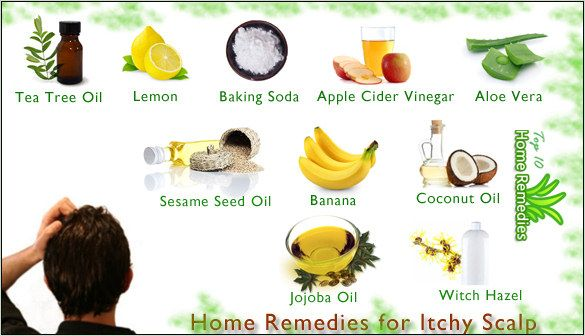 Itchy-scalp home remedies