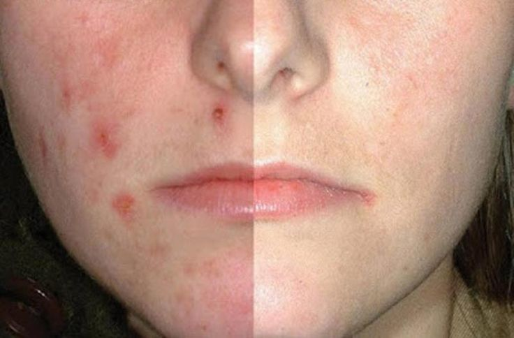 6 Things You Should Never Do When You Have Acne