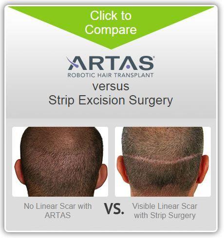 Compare ARTAS Robotic Hair Transplants versus Strip Excision Surgery!