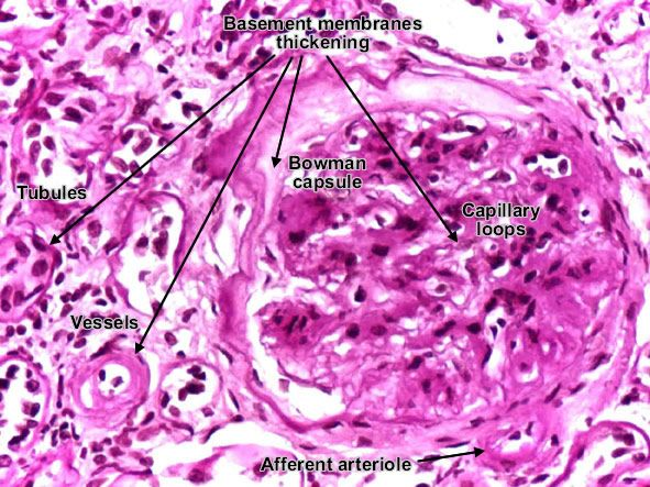 diabetic_diffuse_glomerulosclerosis.jpg (591×443)   ____Diabetic glomerulosclerosis is characterized by thickening of glomerular basement membrane with increased permeability. With time, the mesangial space becomes larger by deposits of proteins (collagen IV), initially diffuse, then nodular.