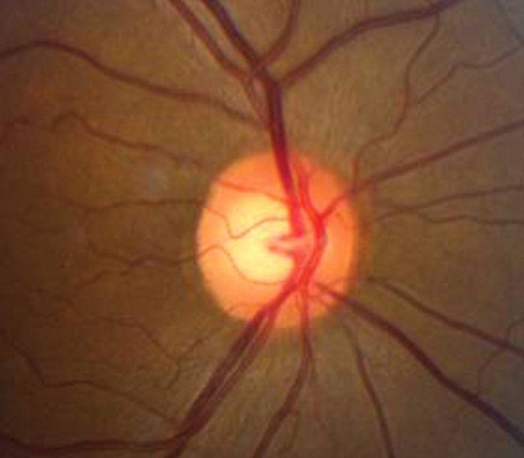 Neuritis Retrobulbar -  La neuritis retrobulbar es la inflamación de la porción del nervio óptico localizada detrás del ojo; en general afecta sólo un ojo. Varias enfermedades pueden inflamar y en consecuencia dañar el área. Frecuentemente la causa es la esclerosis múltiple. Pero también muchas otras enfermedades pueden...