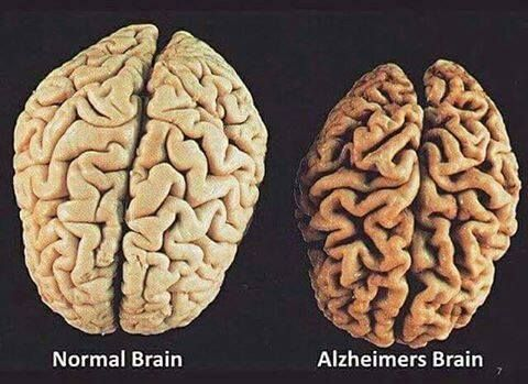 "Normal brain"" Vs ""Alzheimers brain"""