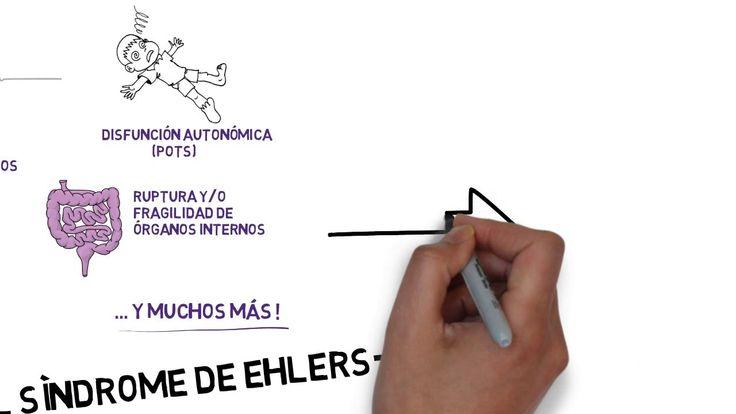 ¿Qué es el síndrome de Ehlers-Danlos? - Vídeo Educativo