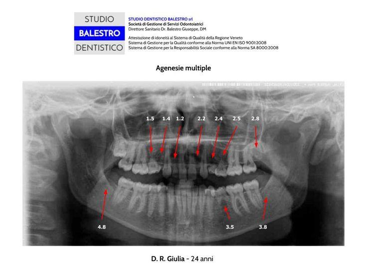 CASI CLINICI ORTODONTICI Agenesie multiple http://www.studiodentisticobalestro.com/2014/09/agenesie-multiple_22.html