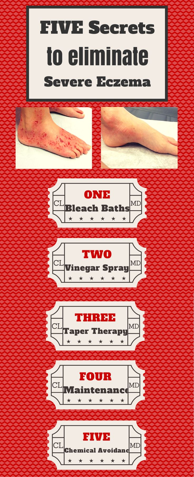 5 Secrets to eliminate severe eczema! Combine things like wet wraps, bleach baths, and TrueLipids and your eczema doesn't stand a chance! See what else is on the list...