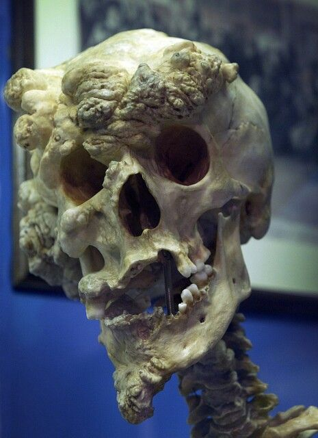 "The skull of Joseph Merrick, otherwise known as the ""Elephant Man""."