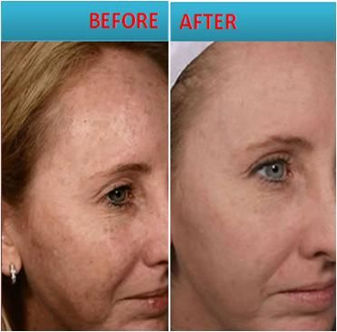 Image result for Melasma Treatment - Fighting Brown Spots On Your Skin From The Inside Out