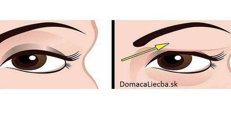 Ovísajúcu či uvoľnenú pokožku okolo očí nemusíte riešiť operáciou alebo botulotoxínom. Tieto efektívne prírodné veci to hravo zvládnu tiež.