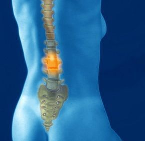 Training: Die besten Übungen für einen gesunden Rücken – gerda