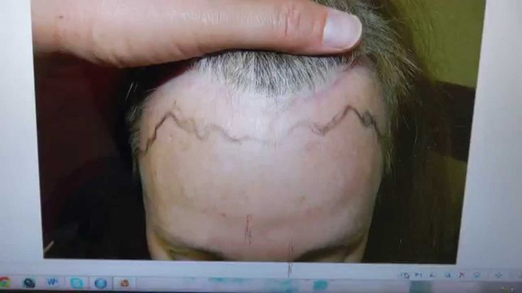 Female Hairline Lowering Transplant Surgery 12 Month Follow Up Result Dr...