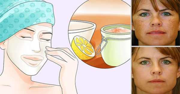 Natural home remedies for age spots - Central Readers