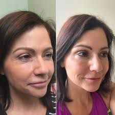In Chicago, ALMI is a 100% safe and painless procedure. It is a natural healing process that doesn't need any fillers. The result of ALMI procedure can be seen immediately after the treatment. It dramatically improves your skin tone and texture.