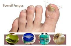 fast home-remedies-to-cure-toenail-fungus