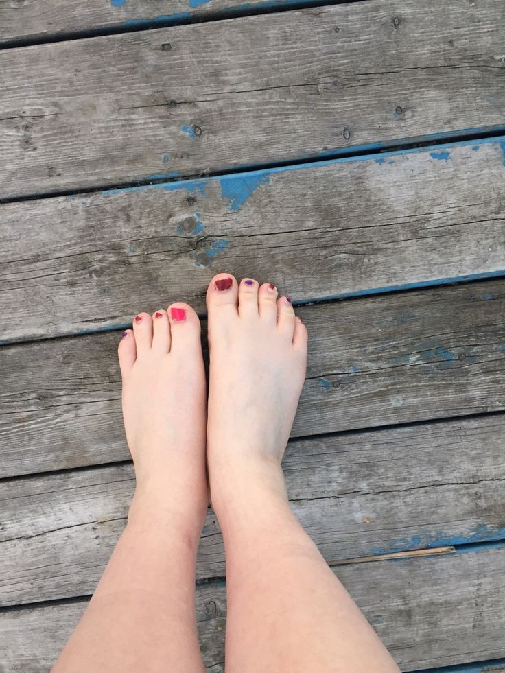 woman-loses-toes