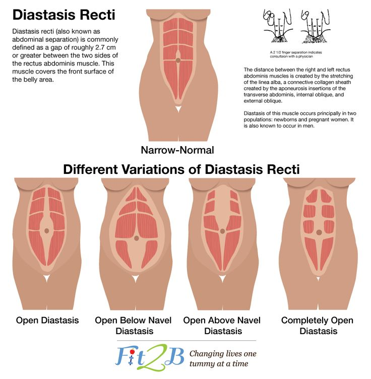Diastasis Recti is a condition where the abdominal muscles separate during pregnancy and which many moms suffer from. Here's more about it and what you can do to help it...