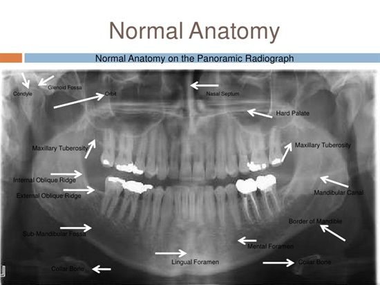 Dental panoramic anatomy